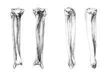 Hand Drawn Medical Illustration Drawing With Imitation Of Lithography: Bones Of Leg (fibula, Tibia)