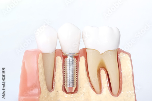 Fototapeta Generic dental teeth model