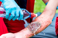 Cooling Third Degree Burn With Water. Paramedic Training, Professional Injury Make-up
