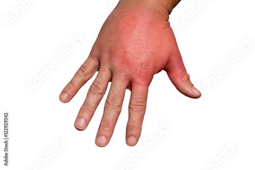 Geschwollene hand