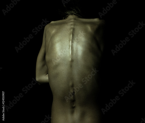 A girl with anorexia turned back, spine and ribs visible Wallpaper Mural