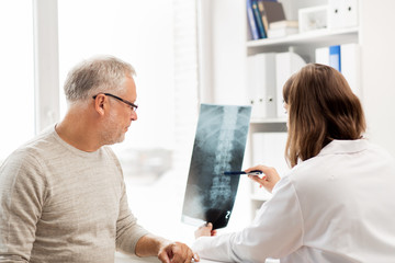 doctor with spine x-ray and senior man at hospital