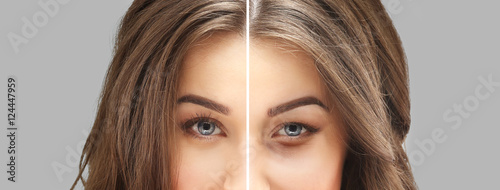 Obraz Lower Eyelid Blepharoplasty. - fototapety do salonu