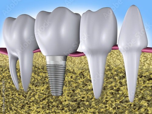 teeth and implant #124560781