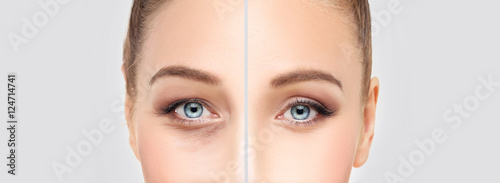 Lower Eyelid Blepharoplasty. Canvas Print
