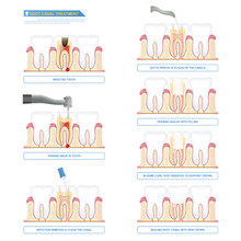 Infographic Root Canal Treatment, Stages Of Root Canal Therapy
