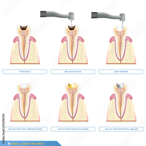 Fotografie, Obraz  Infographics dental caries treatment and the different types of tooth fillings,