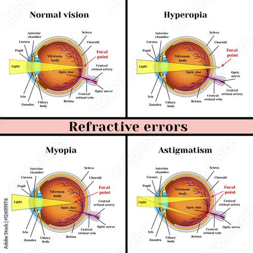 Fényképezés  Refractive errors eyeball: hyperopia, myopia, astigmatism.