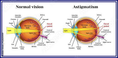 Photo Refractive errors eyeball. Astigmatism.