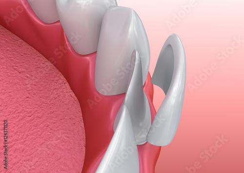 Fotografie, Obraz  Dental Veneers: Porcelain Veneer installation Procedure