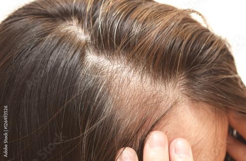 40代の女性の髪