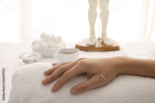 acupuncture needle in woman's hand Wallpaper Mural