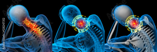 Fotografia 3d rendered illustration of pain neck x-ray collection