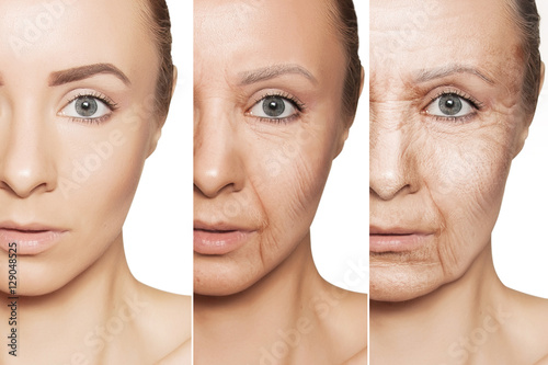 Fotografía  anti-aging procedures on caucasian woman face