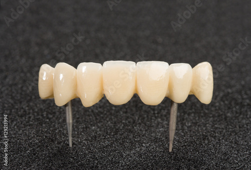 Fotografia, Obraz Crown seven elements on zirconium oxide, detail of the layering ceramic dental implant