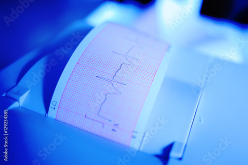 Printing of cardiogram report coming out from Electrocardiograph in labour ward Canvas Print