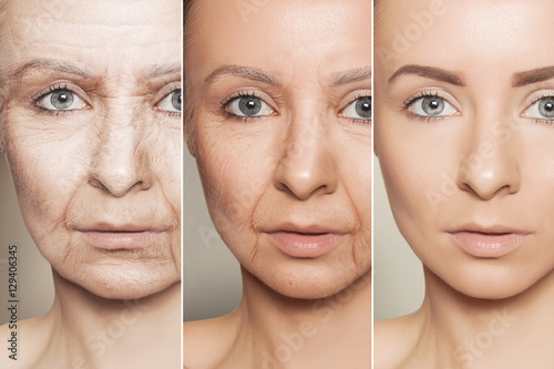anti-aging procedures on caucasian woman face Wallpaper Mural