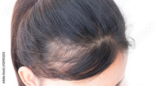 Fotografia  Woman serious hair loss problem for health care shampoo and beau