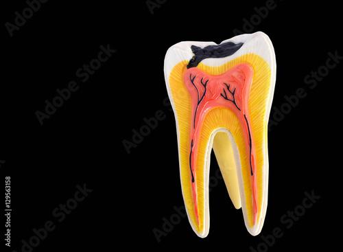 Fotografie, Obraz  Tooth anatomy model