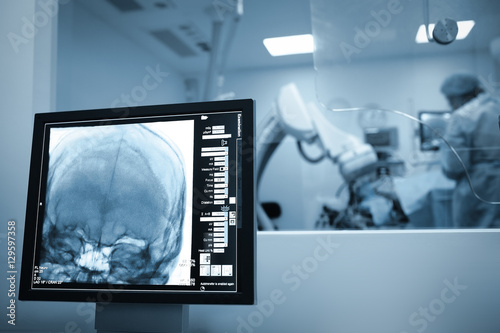 Obraz X-ray scan of the patients brain during surgery - fototapety do salonu
