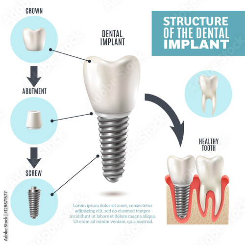 Dental Implant Structure Medical Infographic Poster Wallpaper Mural