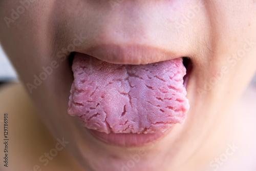 Valokuva  Bacterial infection disease tongue,The tongue is thrush.Tongue w