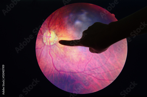 Fotografía Diagnosis eye diabetes.
