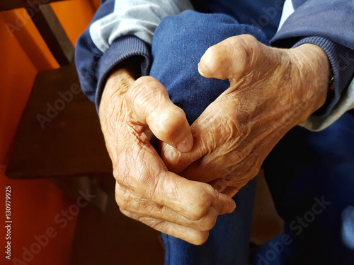 Fototapeta closeup two hands of asian old senior person suffering from leprosy, Thailand