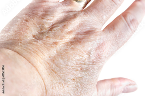 Aging skinBack of a mature woman's hand showing liver spots