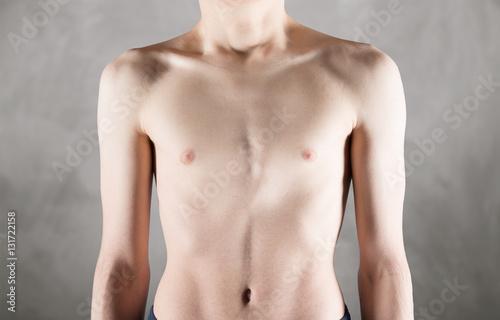Fotografía  torace magrissimo maschile