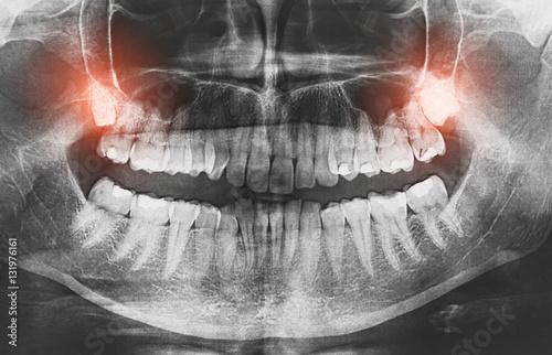 Fotografía  Closeup of x-ray image growing wisdom teeth pain concept.