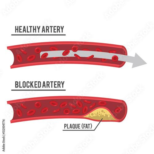 healthy artery and blocked artery Canvas Print