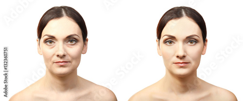 Fotografía  Woman face before and after cosmetic procedure