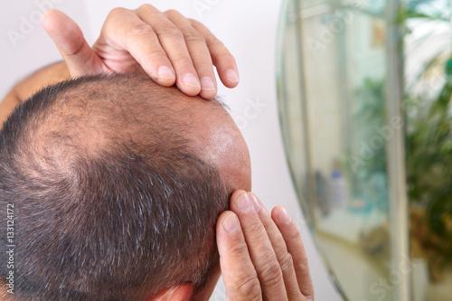Photo Senior man and hair loss issue
