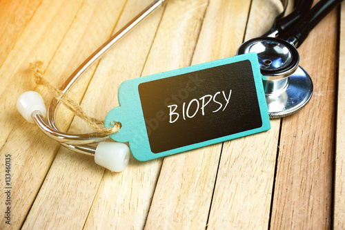 Fotografia, Obraz  Stethoscope and Wooden Tag Written With Biopsy on Wooden Background