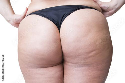 Zdjęcie XXL Tłuste kobiece ciało z cellulitem, tłustymi biodrami i pośladkami