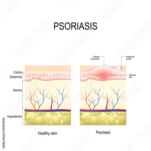 psoriasis vulgaris behandlung blutwerte.jpg