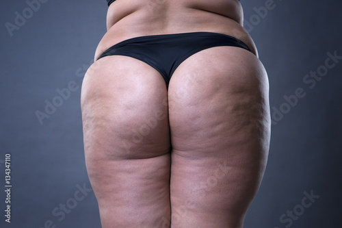 Fotografie, Obraz  Fat female body with cellulite, fatty hips and buttocks