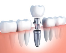 Row Tooth And Dental Implant
