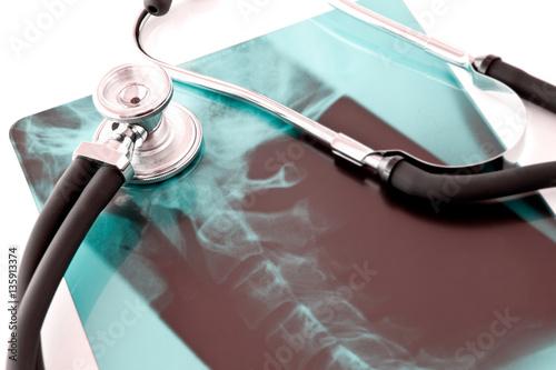 Fotografía  Röntgenbild Wirbelsäule mit Stethoskop