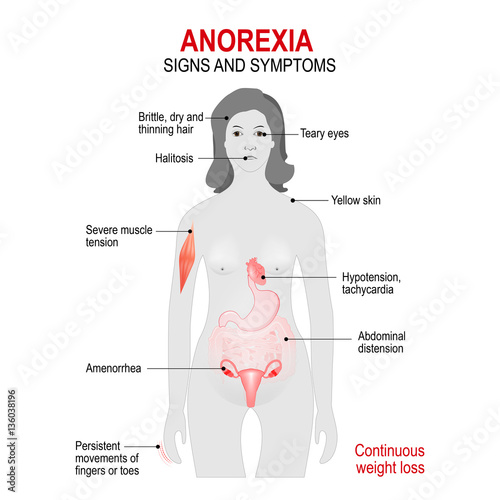Anorexia nervosa. Signs and symptoms. Canvas Print