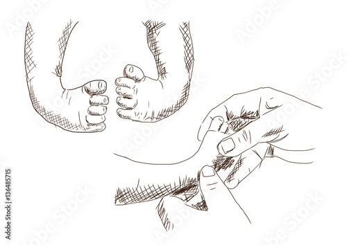 Fotografija  Sketch of baby Clubfoot leg and doing treatment in vector.