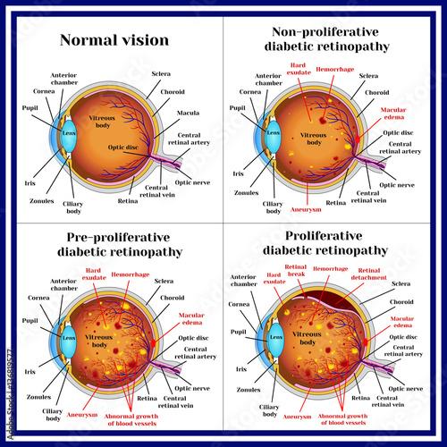 Fényképezés  Types of diabetic retinopathy: non-proliferative, pre-proliferative diabetic retinopathy, proliferative retinopathy of retina