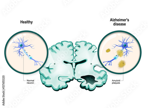 Photo Alzheimer's disease. Neurons and brain