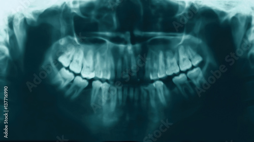 X-ray image of teeth people, stomatology concept – kaufen Sie dieses ...