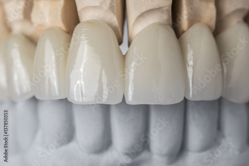 Ceramic teeth in the front Canvas-taulu