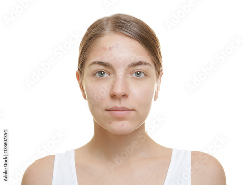Photo Beautiful young woman with problem skin on white background