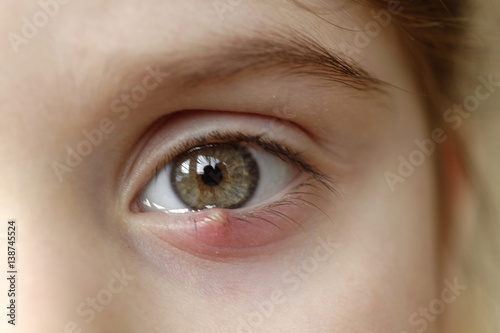 Close-up of a child's eye stye. Ophthalmic hordeolum disease Wallpaper Mural