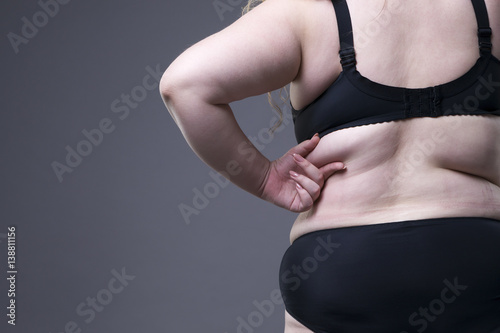 Fotografia, Obraz  Plus size model in black lingerie, overweight female body, fat woman with cellul