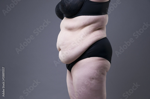 Fotografia, Obraz  Plus size model in black lingerie, overweight female body, fat woman with stretc